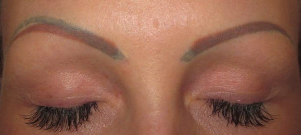 Как и чем вывести перманентный макияж?